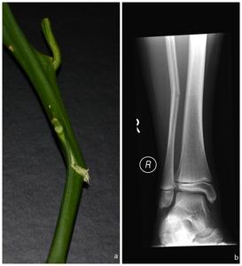 greenstick-fracture